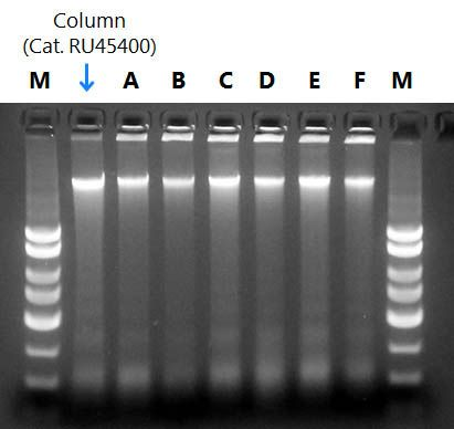 Figure 1. Resolution of DNA isolated from Preserved Saliva Samples.