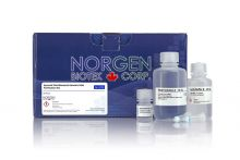 Synovial Fluid Bacterial Genomic DNA Purification Kit